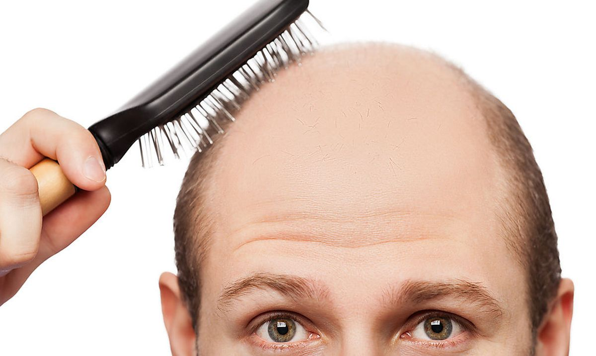 Glatze mit 25
