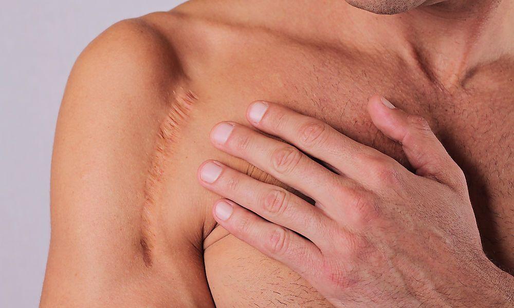 Narben brauchen ein Jahr lang Pflege
