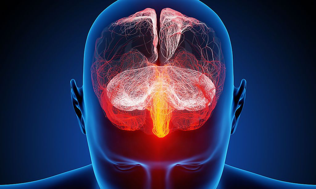 Mit Strom gegen bösartigen Hirntumor