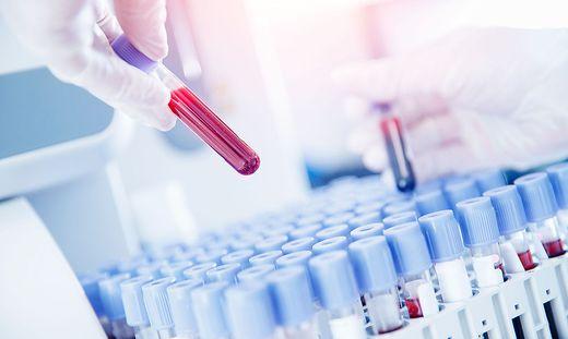 Antikörpertests sollten im Labor durchgeführt werden, wo das Personal und die Geräte hohe Qualitätsstandards gewährleisten