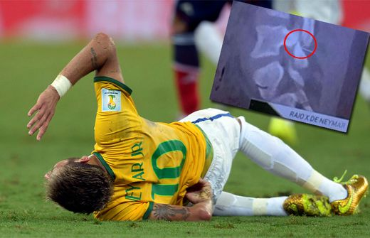 Neymar Verletzung Röntgenbild