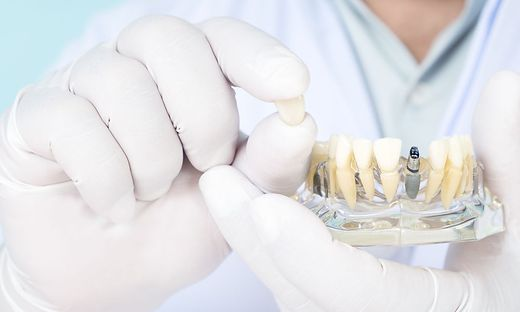 Dentist and implant model.