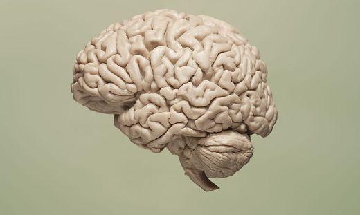 Alzheimer: Großer Rückschlag