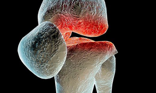 ] Arthritis in the joints