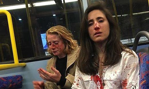 Die verletzten Frauen