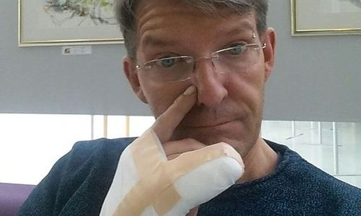 Gerald Grabner erlitt Verbrennungen an der Hand.