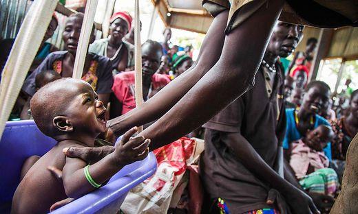 TOPSHOT-SSUDAN-FOOD-CRISIS-FAMINE-HEALTH
