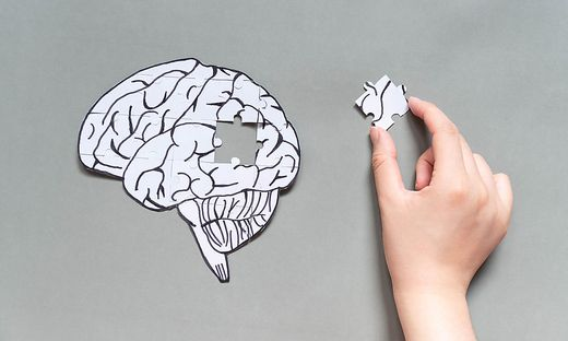 Alzheimer, Medikament, Zulassung