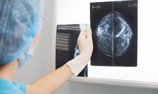 Dramatische Zahlen: 40 Prozent weniger Brustkrebsfälle entdeckt
