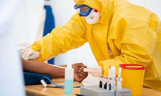 Thrombose als Komplikation von Coronavirus-Infektionen: Ärzte beobachten Bildung von Blutgerinnseln | Gesundheit