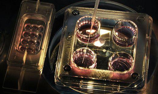 Menschliche Zellen in Tier-Embryo (Sujet)