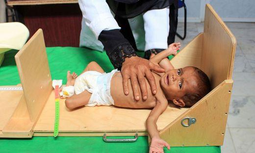 Zwölf Millionen Menschen im Jemen haben nicht ausreichend zu essen