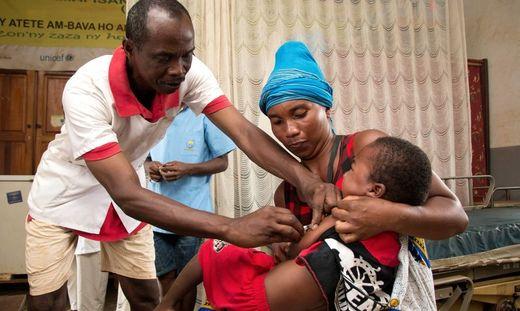 Mehr als 1.100 Tote bei Masern-Epidemie