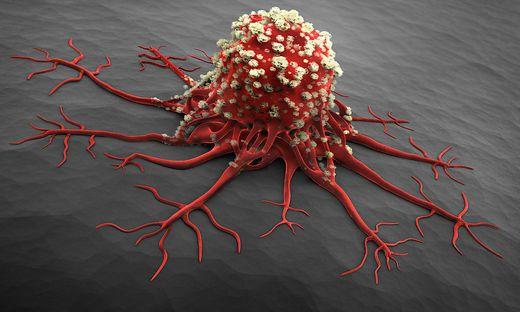 Neue Selbsthilfegruppe: Bauchspeicheldrüsenkrebs: Das sind..