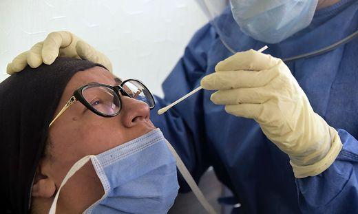 Studie: Geringere Immunität nach milden Infektionen