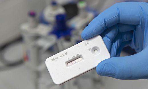"""""""Jetzige Antikörpertests sind reine Geschäftemacherei"""""""