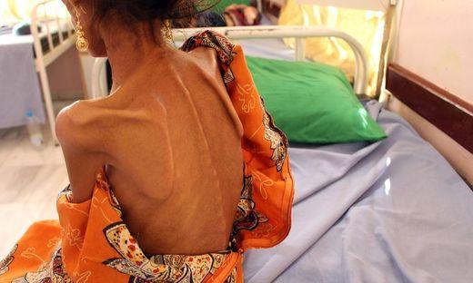 Viele Menschen im Jemen hungern