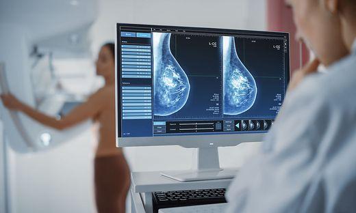 Brustkrebs, Vorsorge