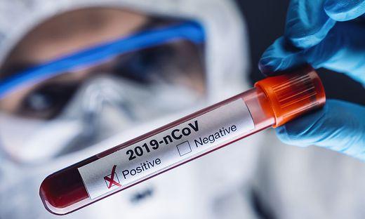 202 Kärntner erhielten binnen 24 Stunden ein positives Testergebnis
