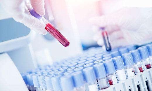 Was bringt mir ein Antikörpertest?