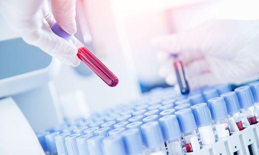 Schützen Antikörper vor einer zweiten Ansteckung?