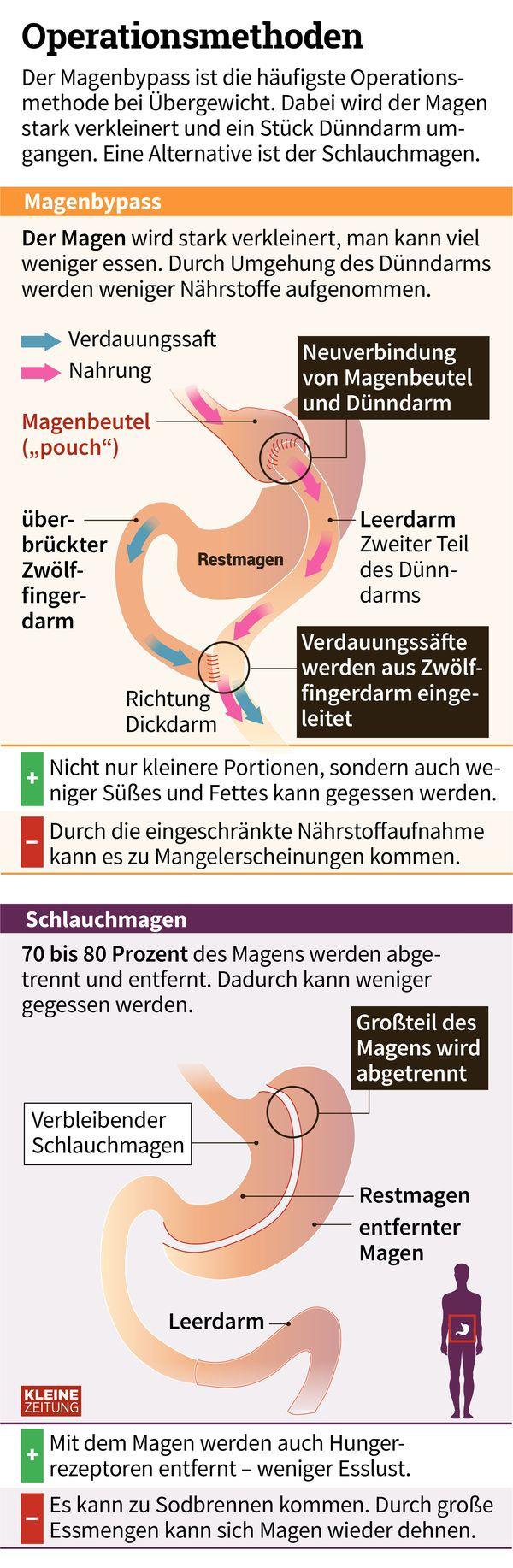 Fein Magen Membran Galerie - Physiologie Von Menschlichen ...